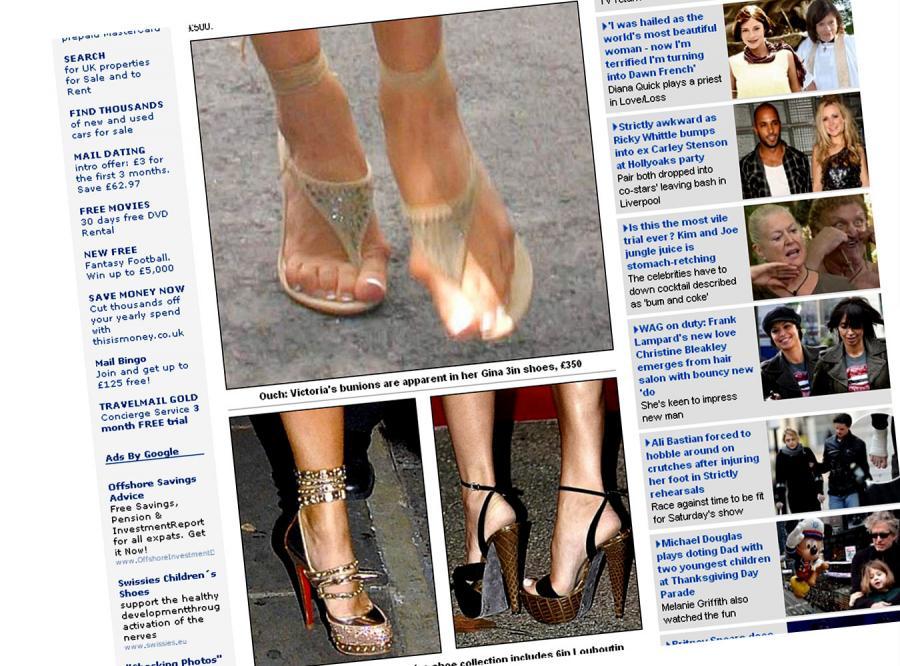 Zobacz zniekształcone stopy trendsetterki