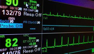 Monitor do badania pracy serca