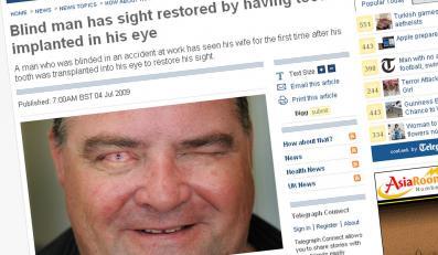 Wszczepili mu ząb do oka i odzyskał wzrok