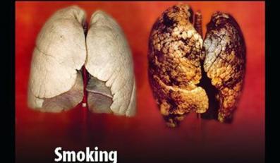Takie obrazki będą na brytyjskich papierosach
