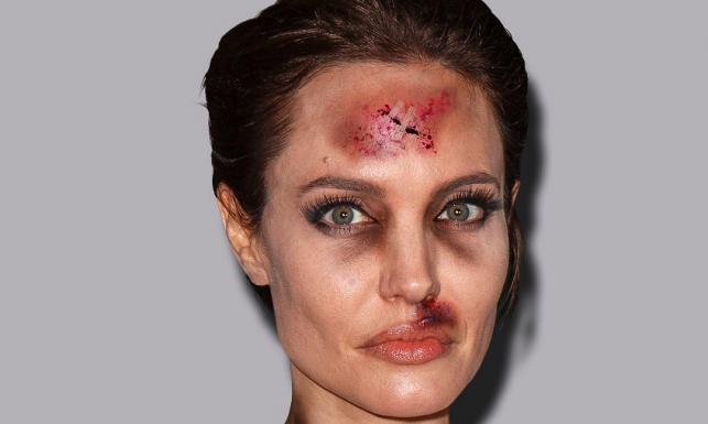 Angelina Jolie ze zmasakrowaną twarzą... Gwiazda pobita w słusznej sprawie. SZOKUJĄCE ZDJĘCIA